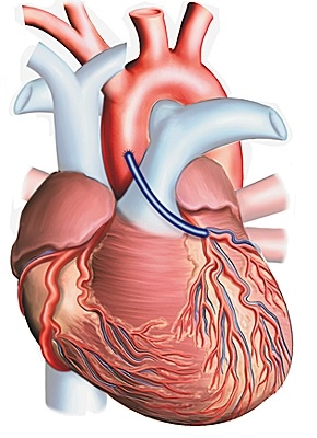 1002012 Technique du pontage aortocoronarien